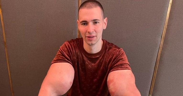 POPAJ NA MUKAMA Mogao bi umrijeti ako ne ukloni otrovnu tvar iz bicepsa